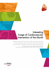 Interesting Image of Cardiovascular Intervention of the Month